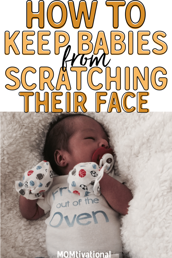 Wondering why does my baby scratch his face so much?! Figure out how to protect baby from scratching face when upset. Although common, you can prevent a baby from scratching their face easily. Also find out when do babies stop scratching their face #Baby #Newborn #NewMomTips